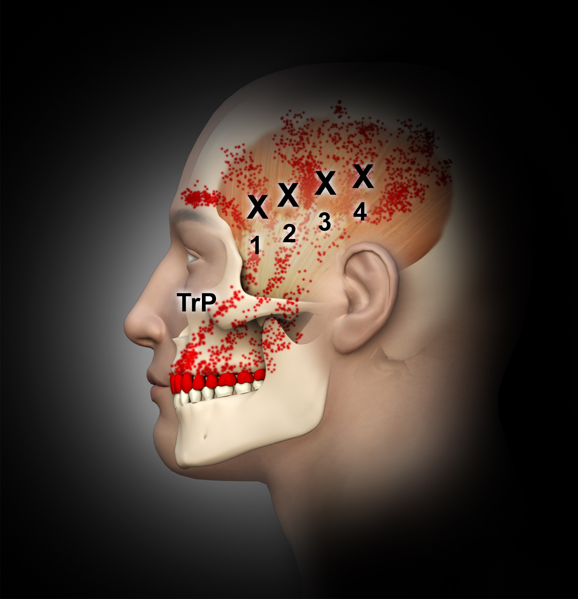 Frontline Temporomandibular Joint/Orofacial Pain Therapy for Every ...