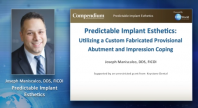 Predictable Implant Aesthetics Utilizing a Custom Fabricated Provisional Abutment & Impression Coping Webinar Thumbnail