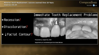 Anterior Immediate Tooth Replacement: Lessons Learned Over 20 Years Webinar Thumbnail