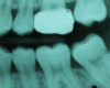 An orthodontic band was placed to distalize the second molar