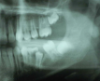 Molar migrations after loss of first molars, 8-year history: 2003