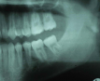 Molar migrations after loss of first molars, 8-year history: 2007