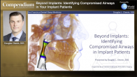 Beyond Implants: Identifying Compromised Airways in your Implant Patients Webinar Thumbnail