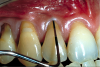 Fig 4. Patient presented with no gingiva on tooth No. 6 and 1.5 mm of gingiva on tooth No. 7 with increasing gingival recession. Probing of each tooth to 3 mm indicated a lack of attached gingiva.