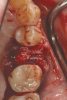 Fig 10. The deficient socket was grafted and the barrier trimmed and positioned over the bone replacement graft material, enabling ideal formation of the final ridge shape.