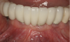 Fig 13. 3 years after prosthetic loading, the alveolar volume enabled both ideal placement and restoration of dental implants and supported healthy, thick keratinized tissue.