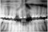Figure 3  After orthodontic therapy, the radiograph did not provide enough diagnostic information to determine if implants could be placed.