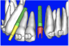 Figure 19a  A patient-specific abutment was designed in the software directly from the CT data.