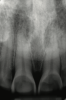 Fig 1. Radiographic image of maxillary incisors presenting signicant radiolucency representative of enamel and dentin loss.