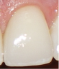 Fig 8. BEWE scoring system: score 0 = no erosive tooth wear (Fig 8); score 1 = initial loss of surface texture (Fig 9); score 2 = distinct defect, hard-tissue loss <50% of surface area (Fig 10); score 3 = hard-tissue loss ≥50% of surface area (Fig 11)