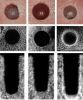fig 6. Results from a preclinical study demonstrating the ability of osseodensi cation burs to densify bone. Top row: surface view of 5.8 mm standard drilling (SD), extraction drilling (ED), and osseous densi cation (OD) osteotomies. Second and bottom rows: micro- computed tomography midsections and cross-sections, respectively. note the layer of dense bone produced on the outer surface of the OD group. (Republished with permission of quintessence Publishing Company Inc, from huwais S, Meyer EG. Int J Oral Maxillofac Implants. 2017;32(1):27-36; permission conveyed through Copyright Clearance Center Inc)