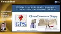 Essential Elements to Gain the Advantages of Digital Technology in Implant Dentistry Webinar Thumbnail
