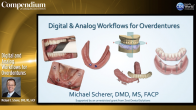Digital and Analog Workflows for Overdentures Webinar Thumbnail