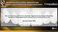 Intra-Oral Scanning and Full Arch Dentistry - Digitally Driving Complex Restorative Solutions for Both Natural Tooth and Implant Treatment Outcomes Webinar Thumbnail