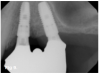 Fig 9. Tilted implant solutions for maxillary posterior partial edentulism. In the same manner that tilted implants can be used to avoid the need for sinus grafting in full-arch implant prostheses, they can be used to avoid direct or indirect sinus grafting when insufficient posterior maxillary bone volume challenges a fixed dental prosthesis implant restoration. Fig 7: Software planning for implant placement is shown with tilting of the distal implant along the anterior wall of the maxillary sinus where there is insufficient bone in zone 3. Fig 8: Postoperative radiograph of the implants and abutments reveals the angulation of the implant resolved by the CAD/CAM abutment. Fig 9: Final radiograph of the implant prosthesis following restorations demonstrates the inclusion of a tooth in the molar position without sinus grafting.