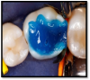 Fig 3. Total etch (etch and rinse): maximum adhesion to both enamel and dentin with optimum marginal integrity.