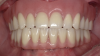 Fig 8. Implant- and mucosa-supported removable overdentures.