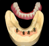 Fig 18. Conical abutments were used to retain an implant-supported removable prosthesis.