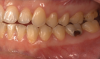 Fig 1. and Fig 2. Multiple carious posterior teeth after use of e-cigs. Fig 1: Gross caries on maxillary and mandibular right first molars; Fig 2: Gross buccal caries on a mandibular left first molar. (Reprinted with permission from Journal of Esthetic and Restorative Dentistry.28 Copyright 2020, John Wiley and Sons).