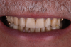 Fig 10. The maxillary incisal edges were in uniform convexity in relation to the lower lip curvature (Fig 10) and were angled toward the inner vermillion border of the lower lip (Fig 11).