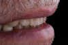 Fig 11. The maxillary incisal edges were in uniform convexity in relation to the lower lip curvature (Fig 10) and were angled toward the inner vermillion border of the lower lip (Fig 11).