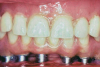 Fig 2. Historically, the construction of prostheses left the rehabilitation raised above the gingiva. These were referred to as a high-water hybrid.