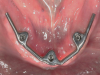 Fig 5. A mandibular bar can facilitate angulation corrections of malaligned implants, idealize parallelism of retentive elements, and provide better hygiene access than a fixed prosthesis because the overdenture can be removed.