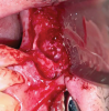 Fig 7. Intraoperative photograph showing a distinct layer of solidified grafted material covering the Schneiderian membrane after removal of failed bone graft.